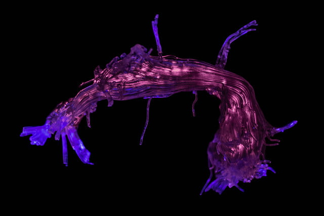 wellcome image awards 2017 b0010928 3d printed reconstruction of the arcuate