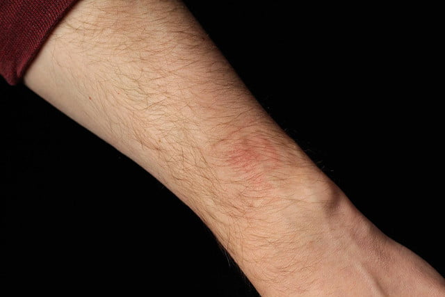 healbe gobe review wrist indent